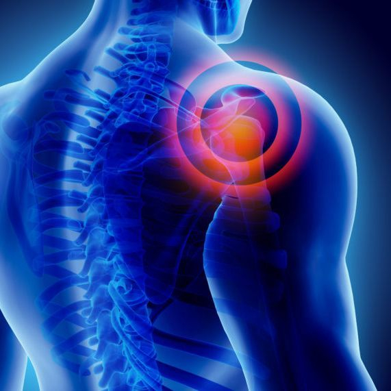 Exercise specialist for shoulder replacement/pain in Plymouth, Devon