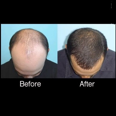 Hairloss Treatment, PRP, Platelet Rich Plasma, Hair Loss