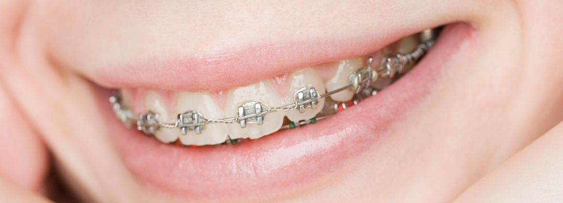 Orthodontics, ortho treatment, crowding,malocclussion, braces, crooked teeth,overbite,overjet,crowding,ugly teeth