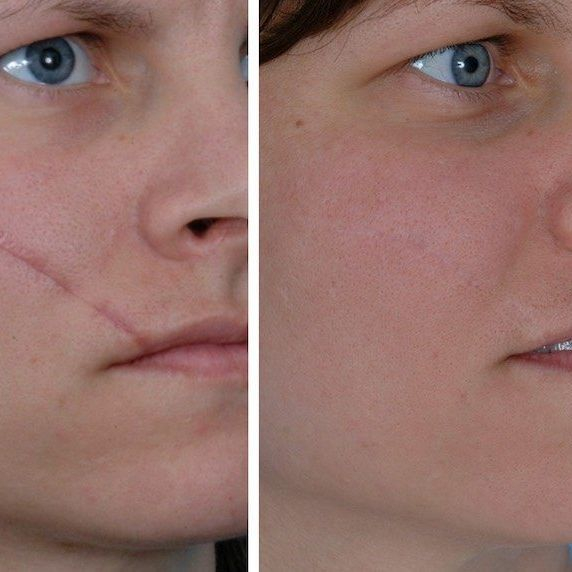 Sciton, Scar Removal, Laser Treatment