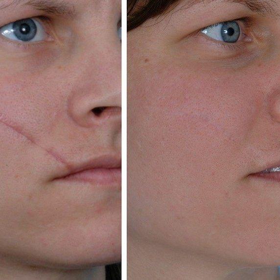 Sciton, Scar Removal, Laser Treatment