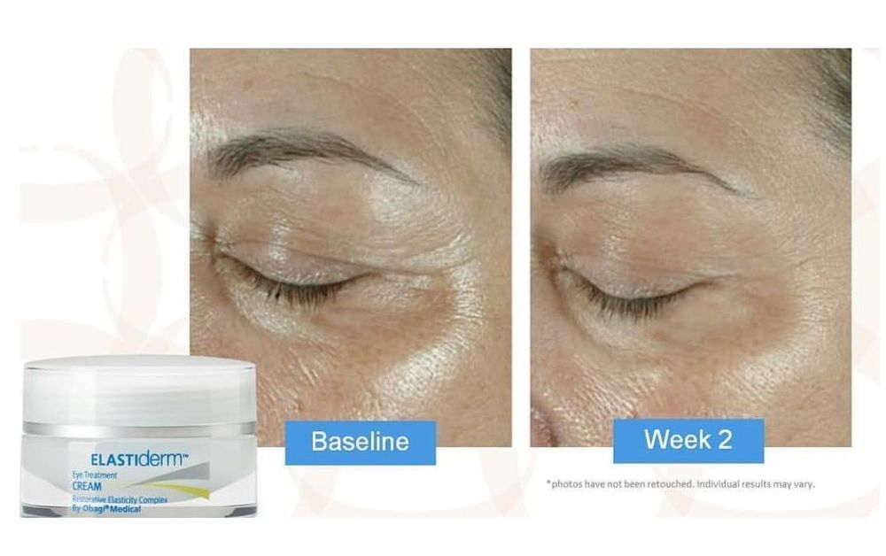 Obagi Elastiderm Eye Cream 15 G