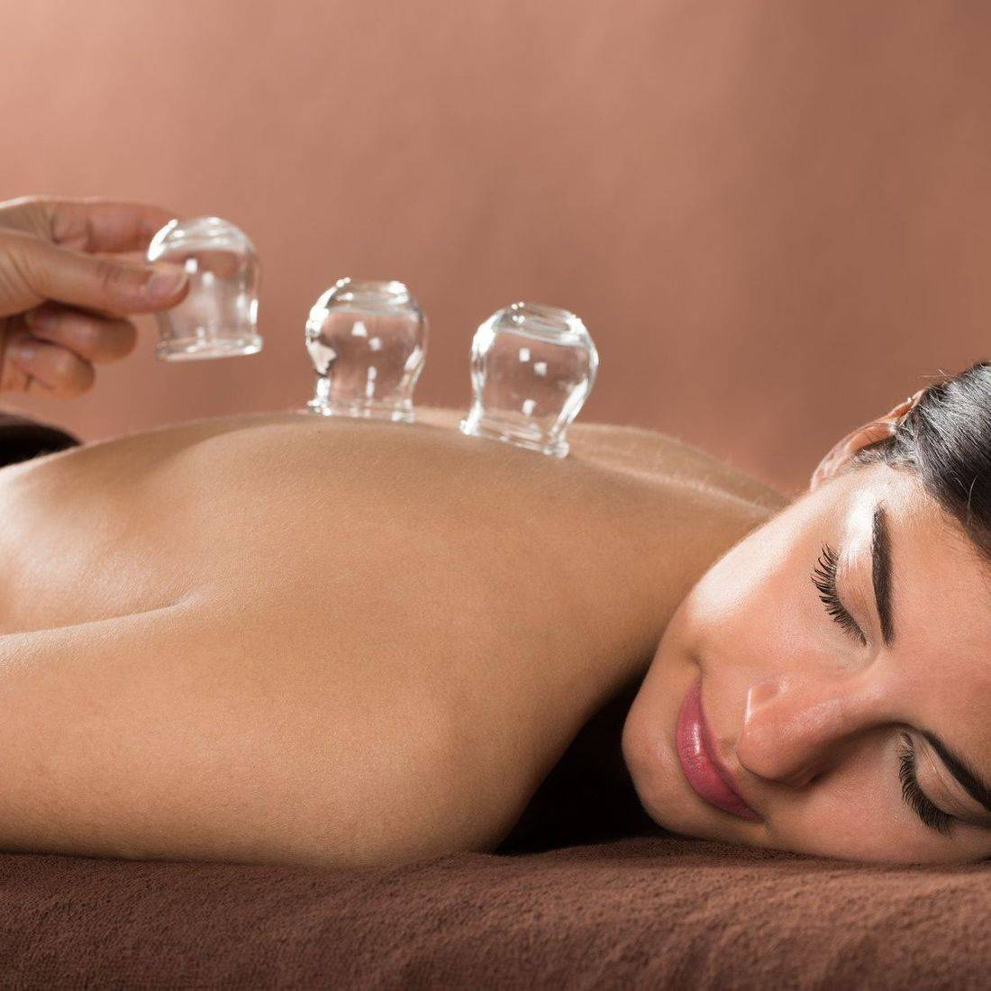 Cupping-Therapy, AIW Community Wellness Center
