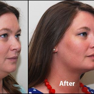 Kybella, Injection, Medical Spa, Double Chin Reduction, Double Chin Elimanation