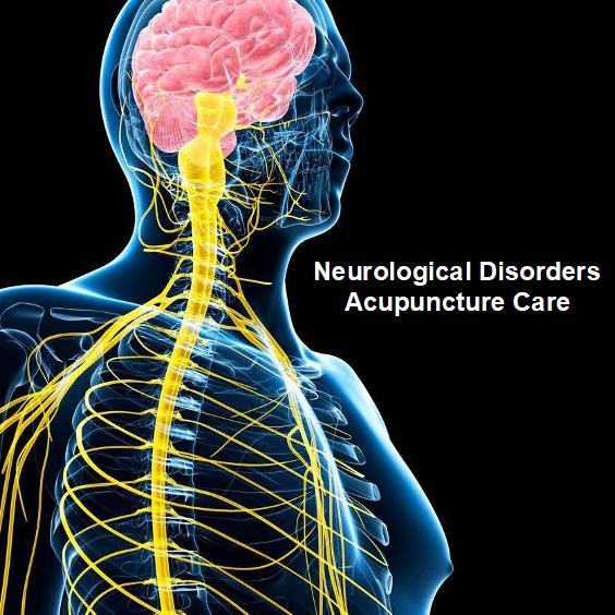 RUI Neuro-Acupuncture Care,  Best Acupuncture Clinic Rochester NY, Syracuse NY, Binghamton NY,  Best Acupuncturist Rochester NY, Syracuse NY, Binghamton NY,  Best Acupuncture Rochester NY, Syracuse NY, Binghamton NY,