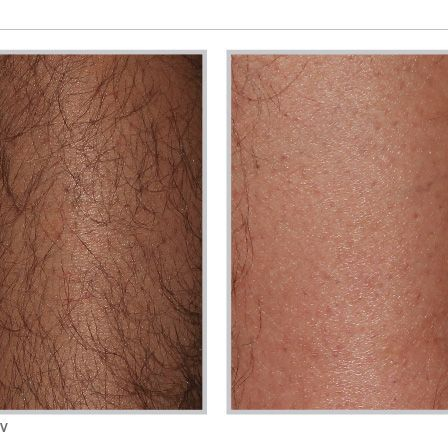 Before and after laser hair removal Forever Bare BBL