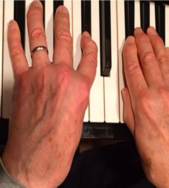 older adult hands playing piano music therapy