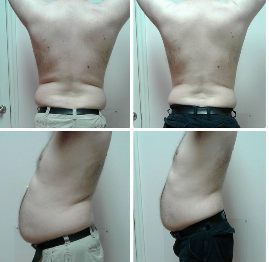 strawberry laser lipo, coolscuplt, weight loss