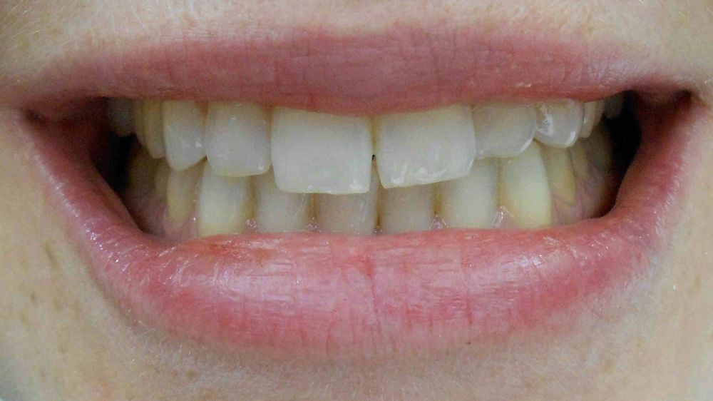 In need of cosmetic dentistry