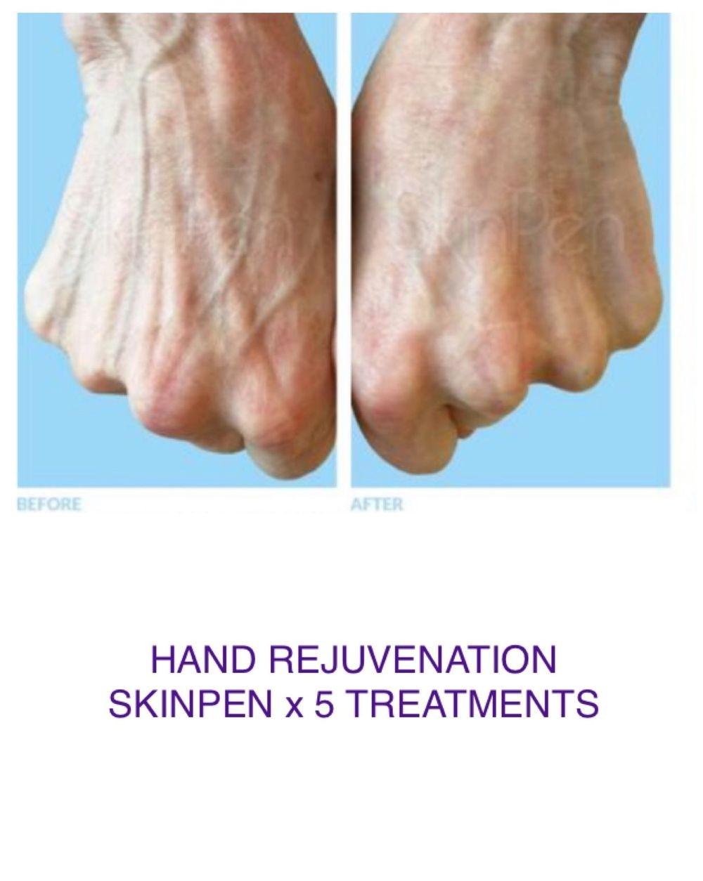 hand restoration skin pen