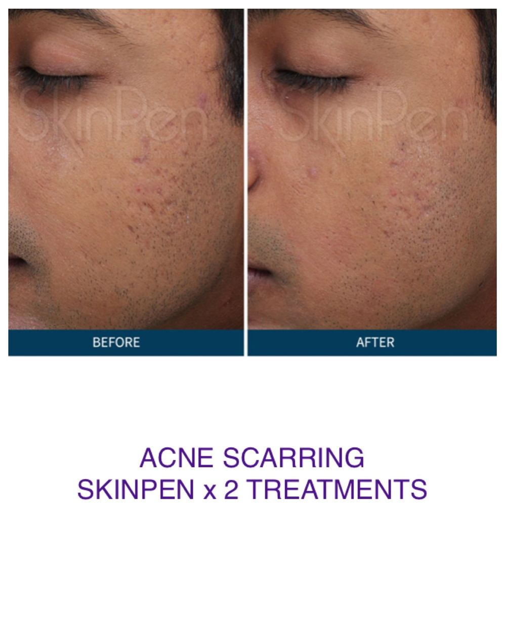 acne scarring skin pen
