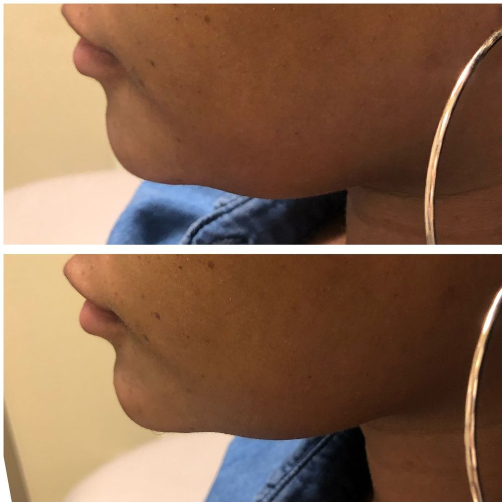 defined chin