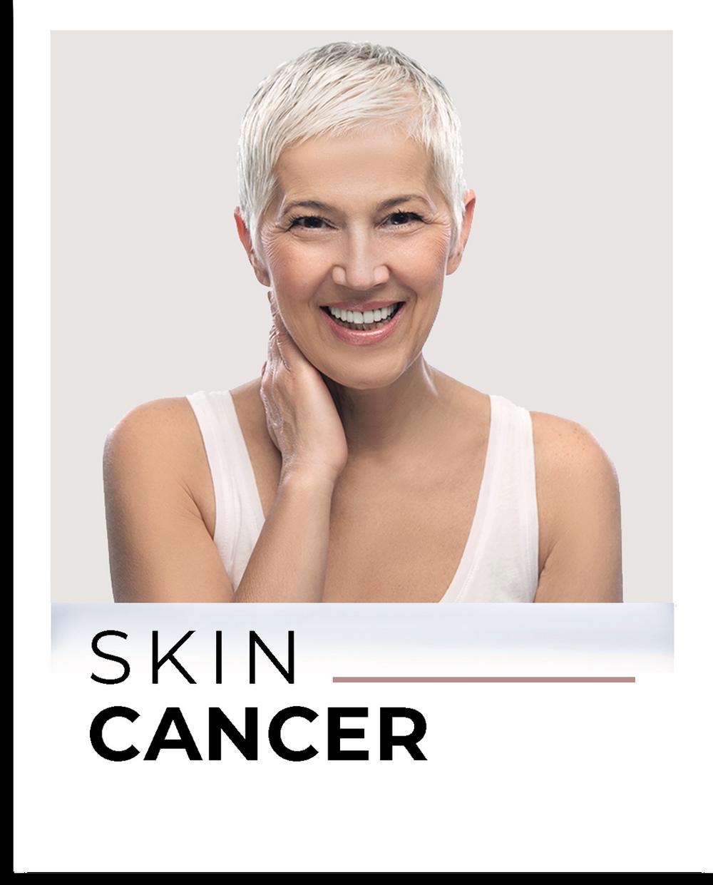 Louisville Skin Cancer