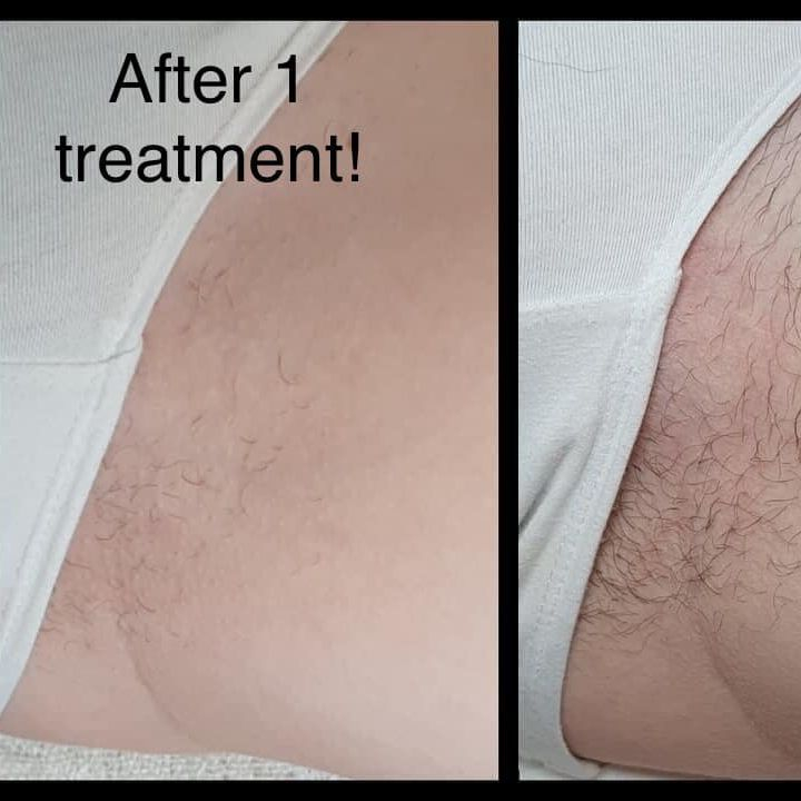 Hollywood laser hair removal Mansfield