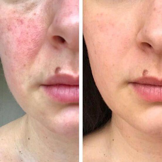 skincare, skin clinic, Nimue, skin challenge, lockdown skin, maskne, acne, anti ageing, pigmentation rosacea,