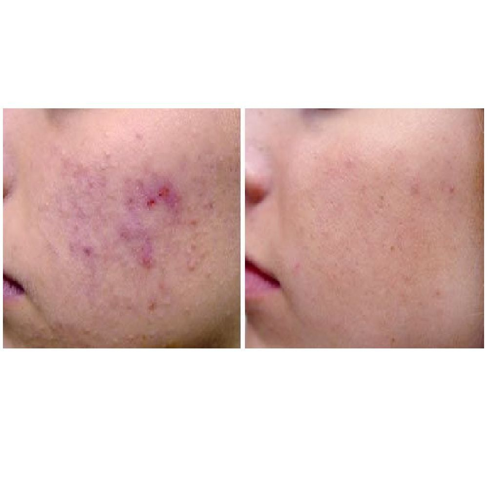 Sciton Laser Acne Treatment