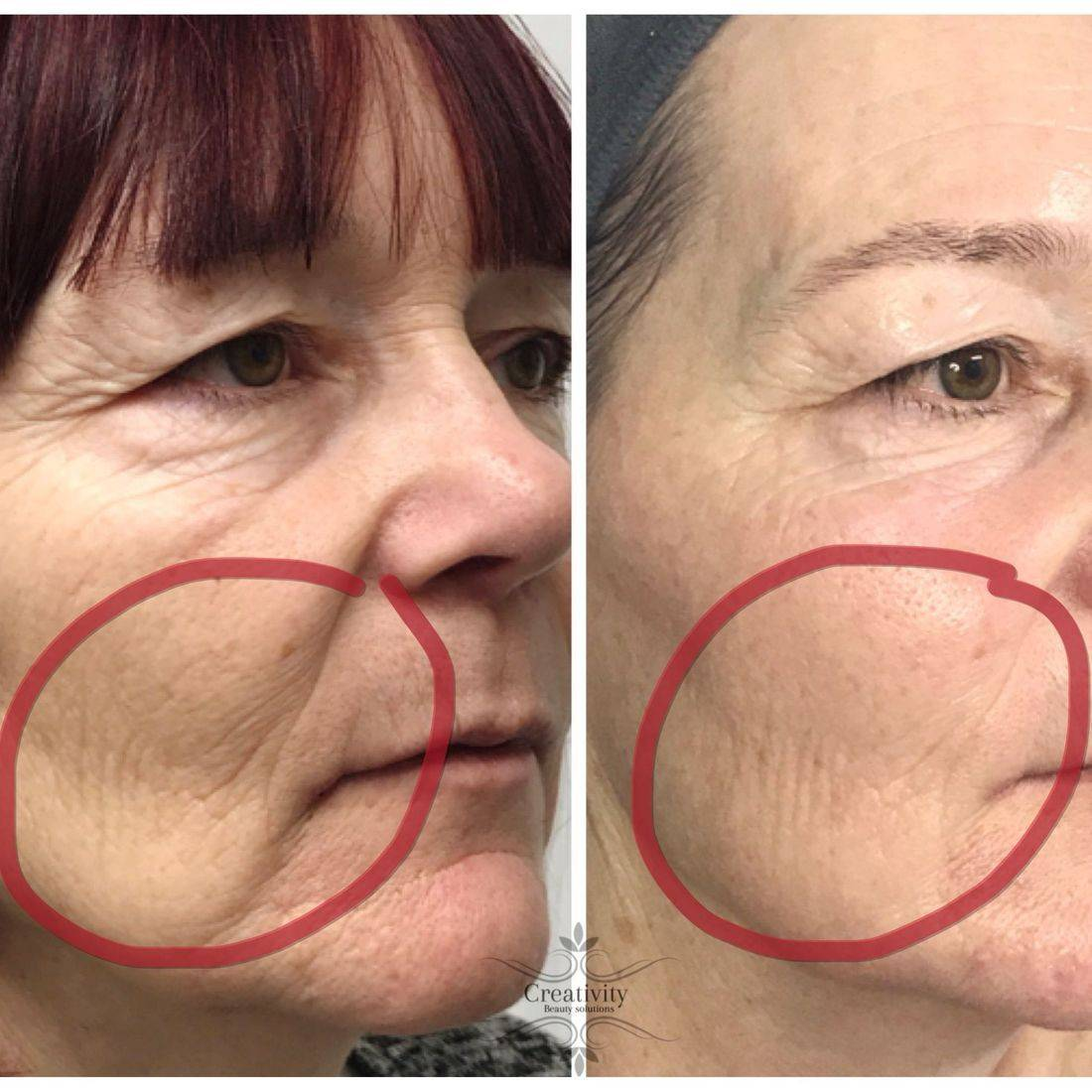 Non surgical facelift, facial, dermalogica, beauty salon Lower Earley Reading