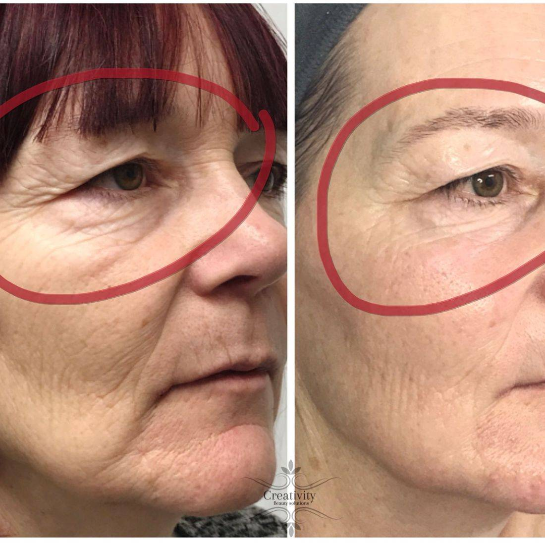 Non surgical facelift, facial, dermalogica, caci, beauty salon, Lower Earley Reading