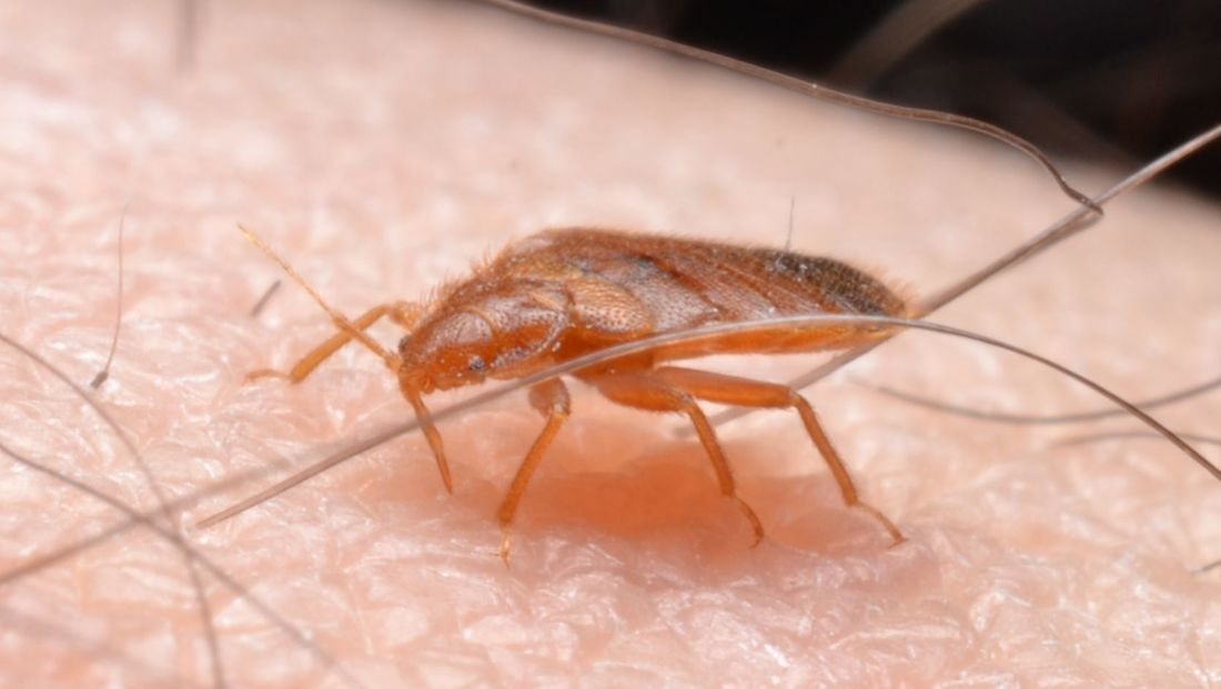 Bed Bug Biting Human Skin