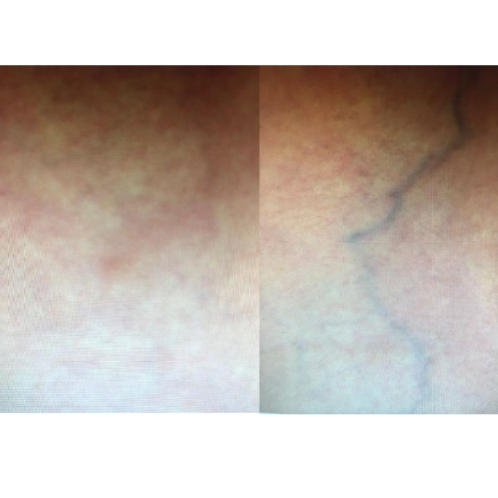 Asclera treatment before and after