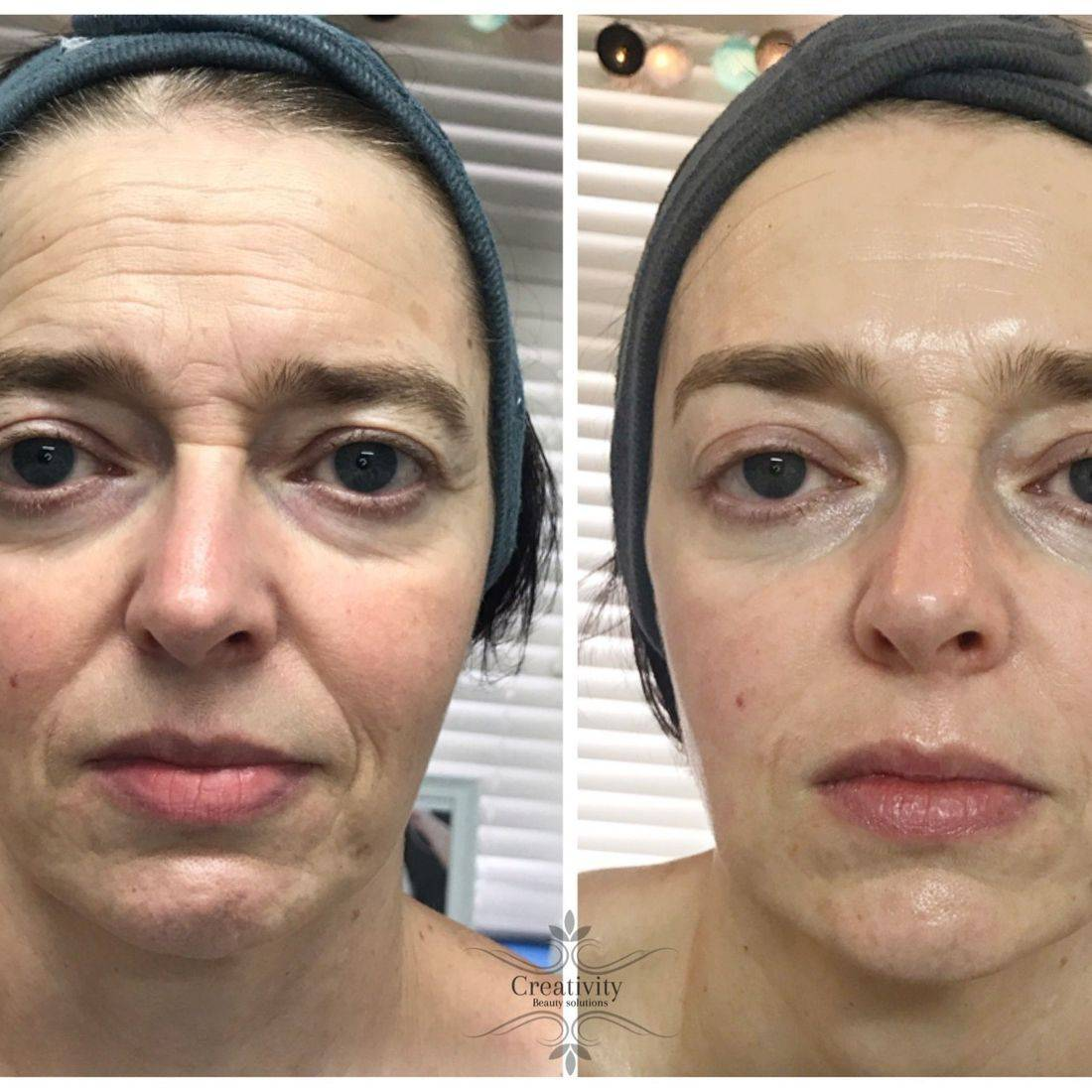 Creativity Beauty Solutions Demalogica Non surgical facelift Caci results