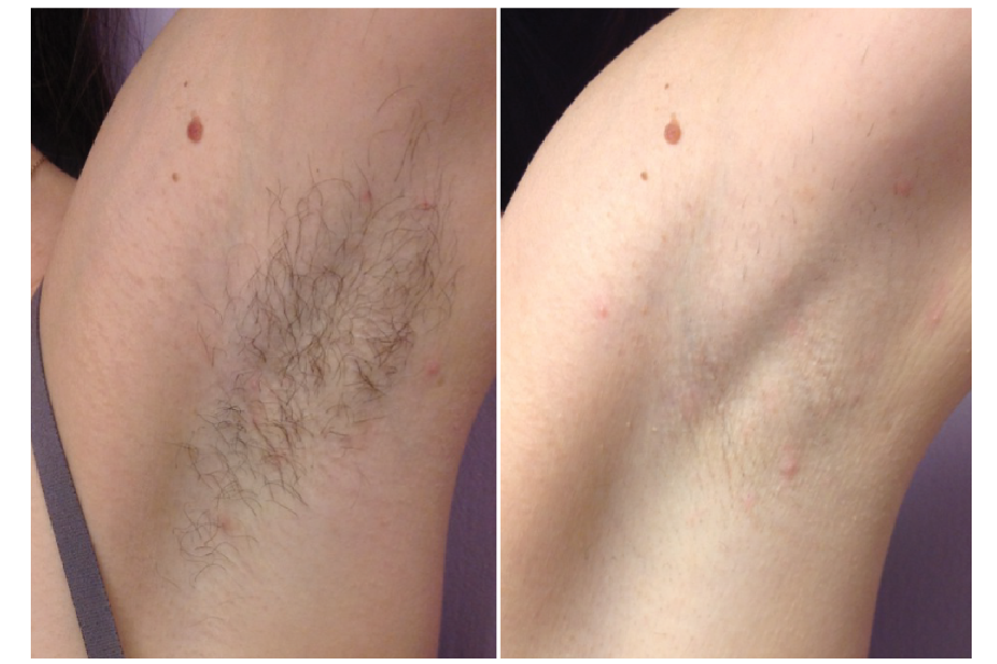 Sciton, Forever Bare BBL, BBL, Laser Hair Removal, Medical Spa