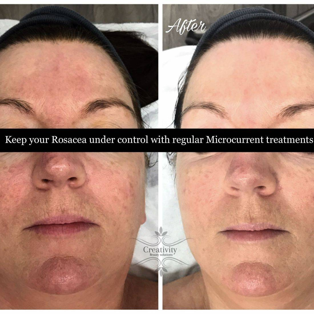 Treating Rosacea, Facial, Microcurrent, Dermalogica, Beauty salon Lower Earley Reading