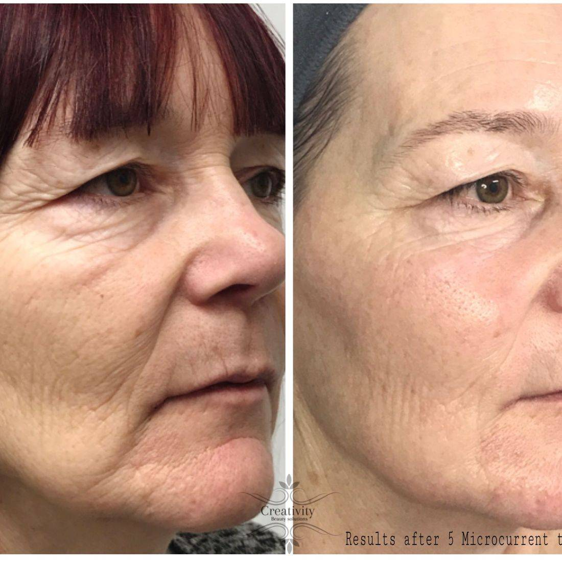 Non surgical Facelift, facial, skincare, Creativity beauty solutions, Beauty salon Lower Earley Reading