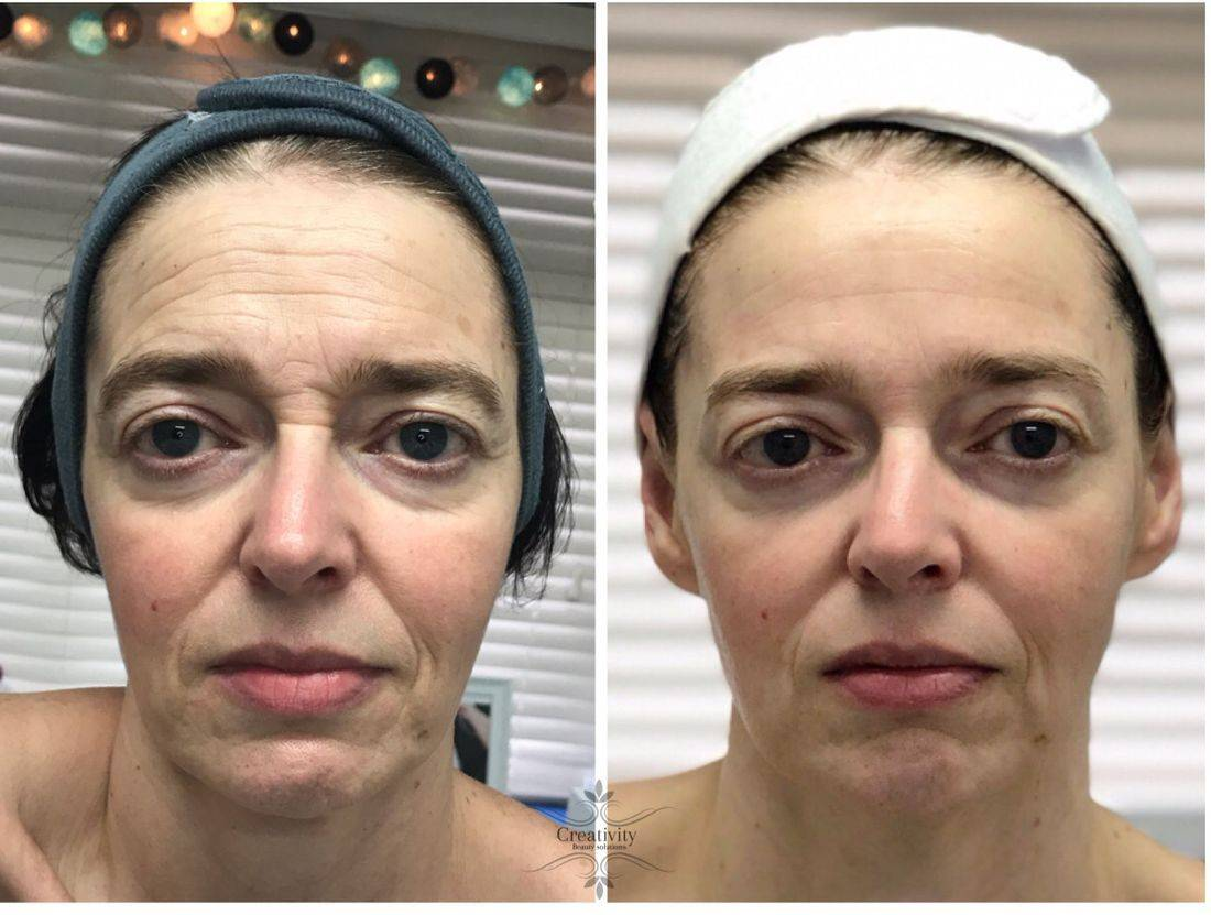Non-surgical facelift, caci, Dermalogica, microcurrent facial