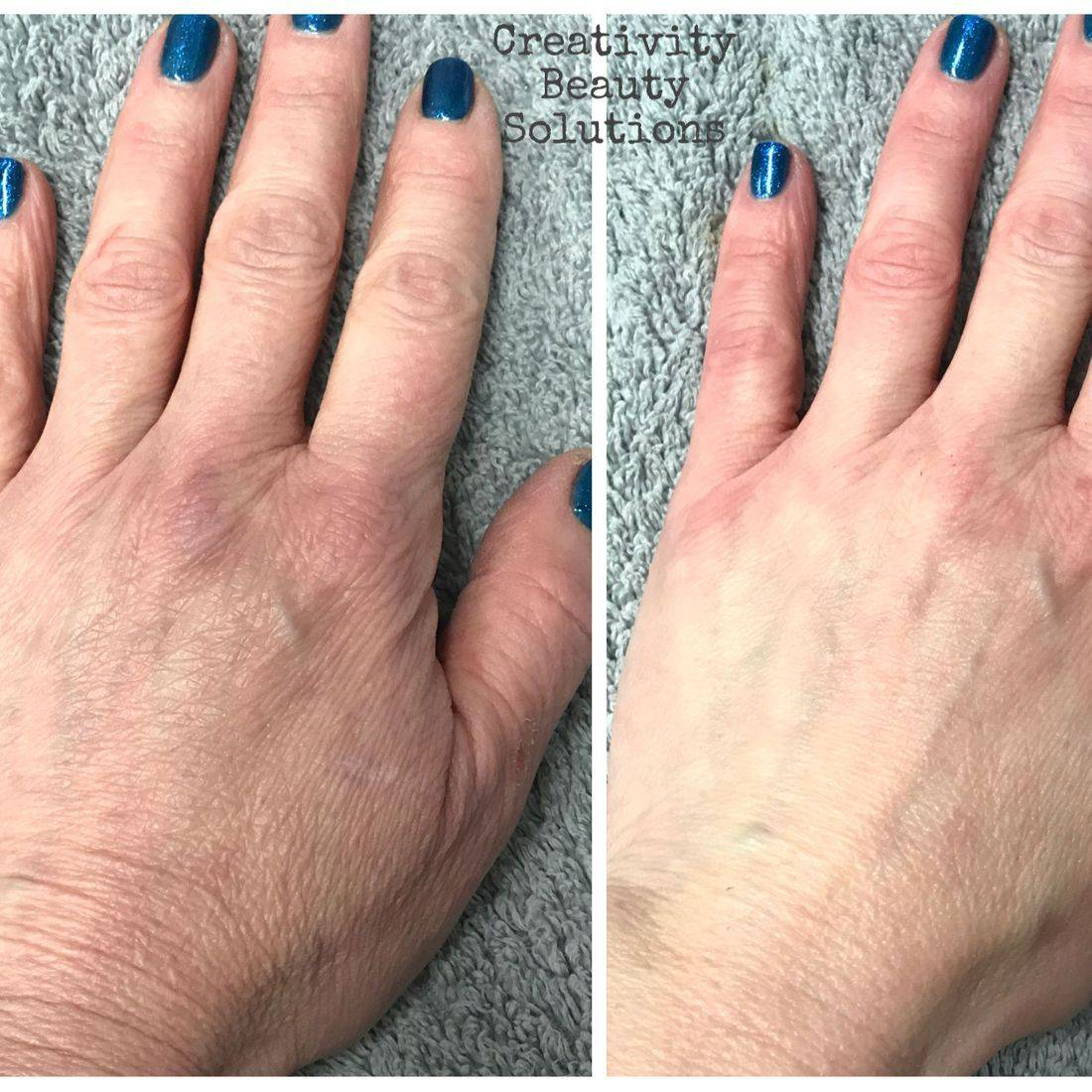 Microcurrnet platinum touch hand renewal treatment anti ageing