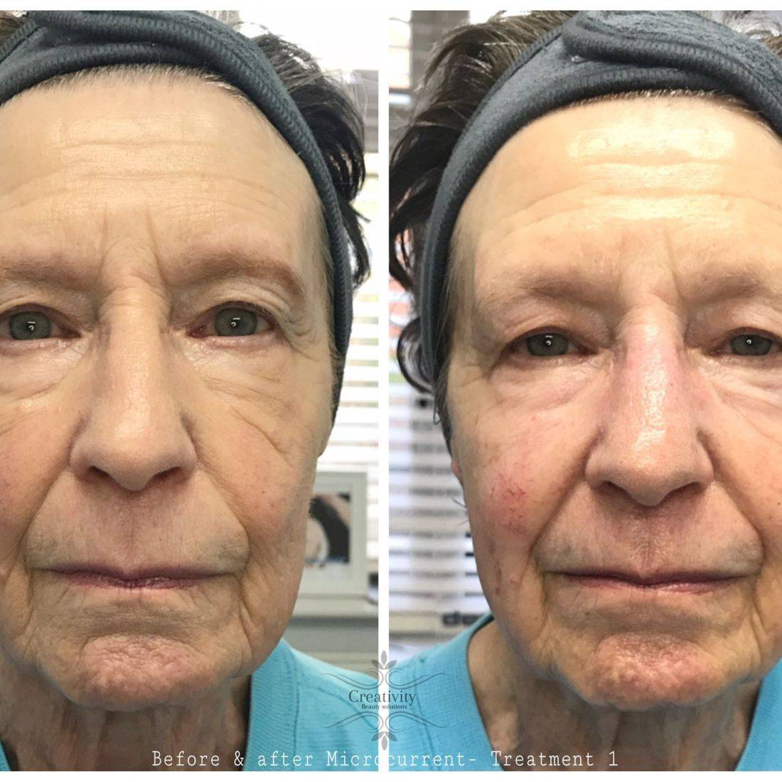 Non surgical facelift, Caci, Dermalogica, Facial, Reading, Lower Earley