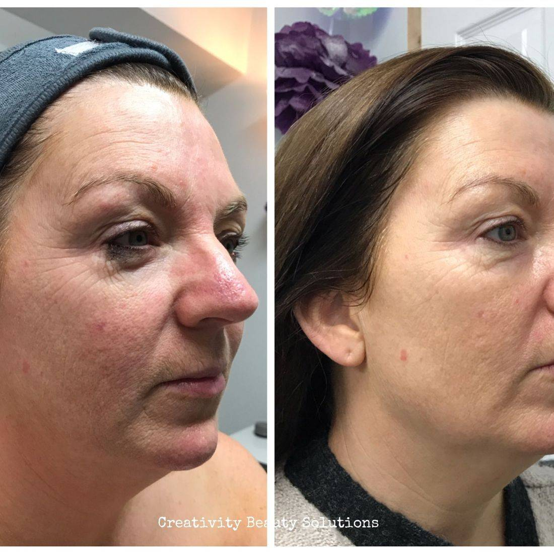 Microcurrent caci non surgical face lift facial treatment