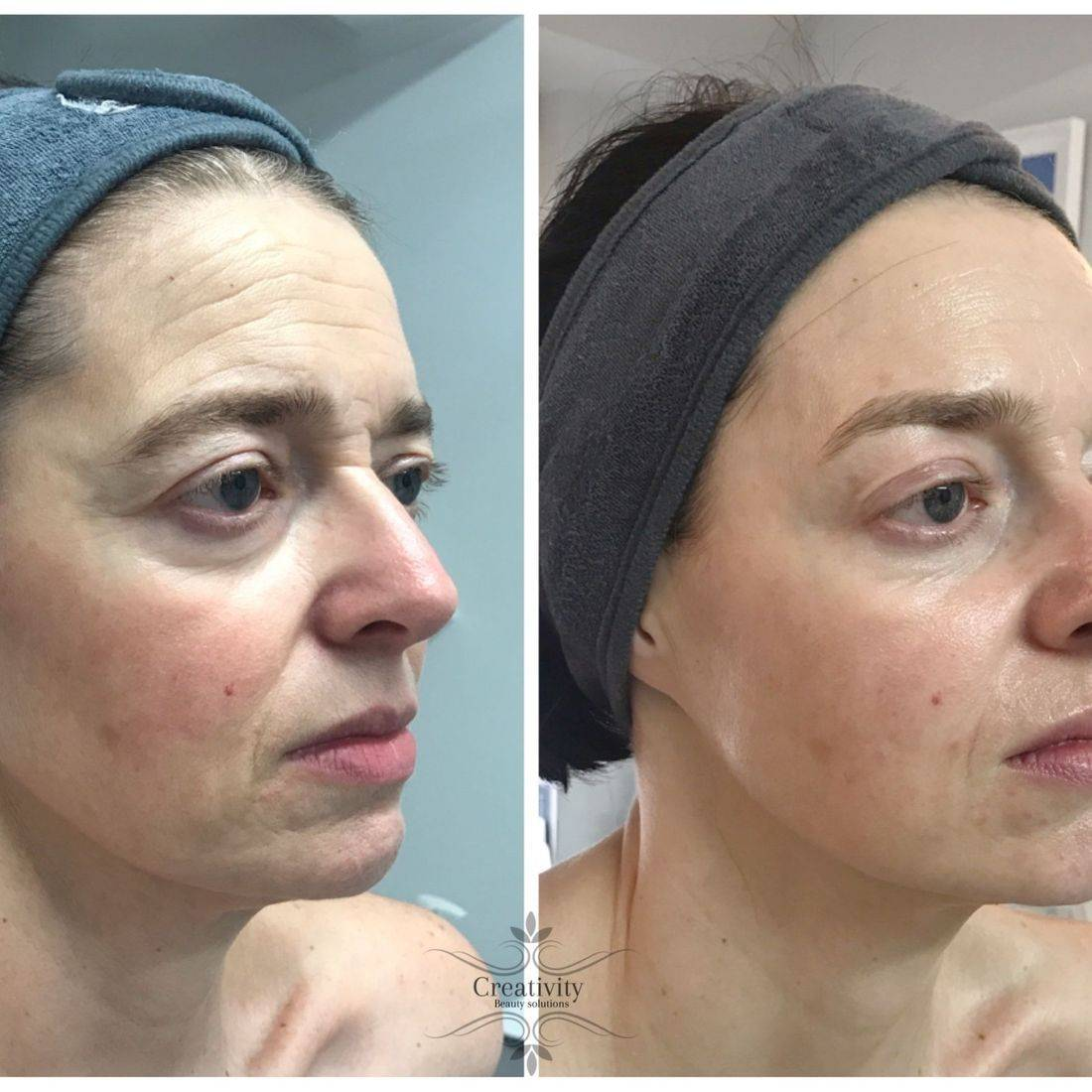 Non surgical Facelift Dermalogica , Facial,  Reading, Lower Earley