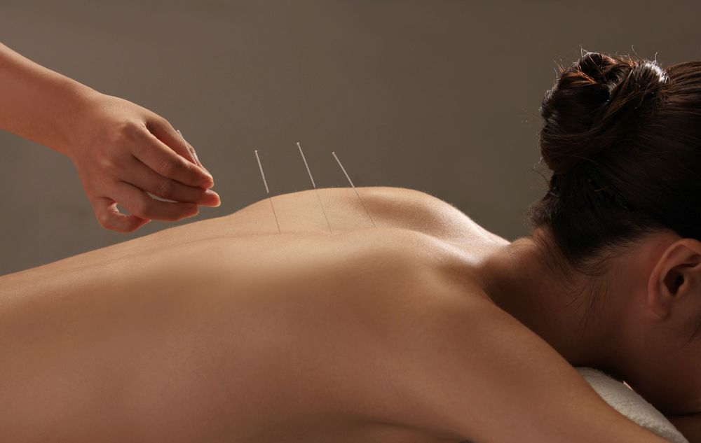 April Bui Acupuncture Houston