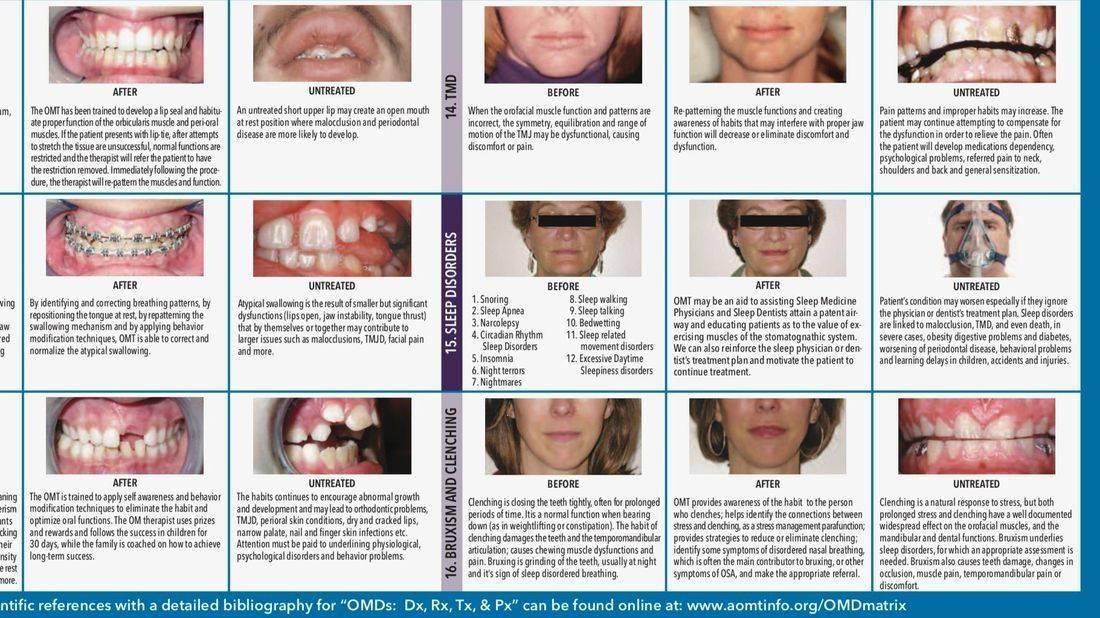 Examples of myofunctional disorders