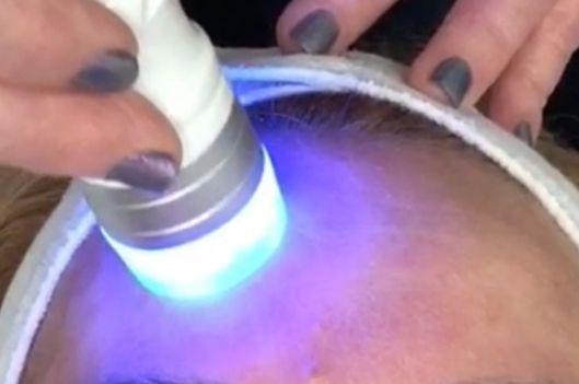 Radio frequency skin tightening anti ageing facial