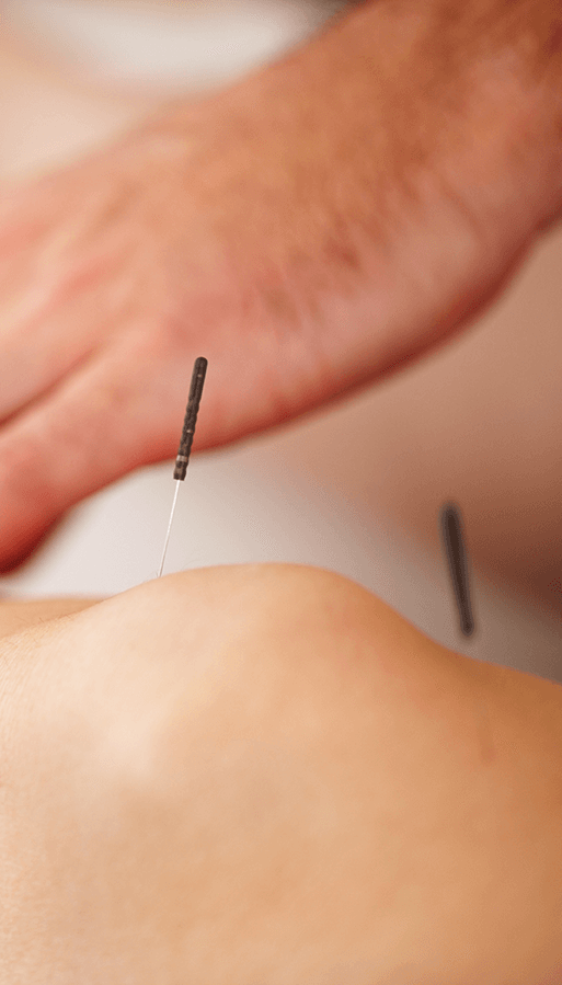 On Point Physio Ltd. - Acupuncture, Epsom