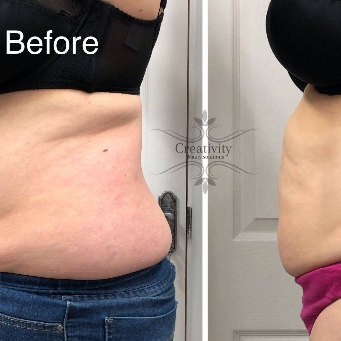 Radio Frequency body contouring sculpting