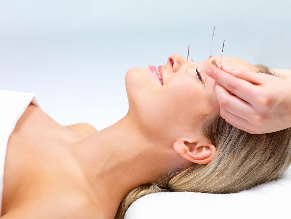 Photo of a client receiving acupuncture needles