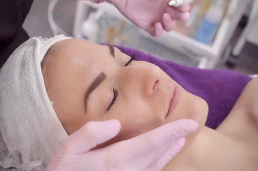 micro needling, Anti age, faltenfrei, Narben, Akne, Faltenreduktion, Aufhellung von Pigmentstörungen, Hautverjüngung, Dehnungsstreifen, vorher/nachher Effekt