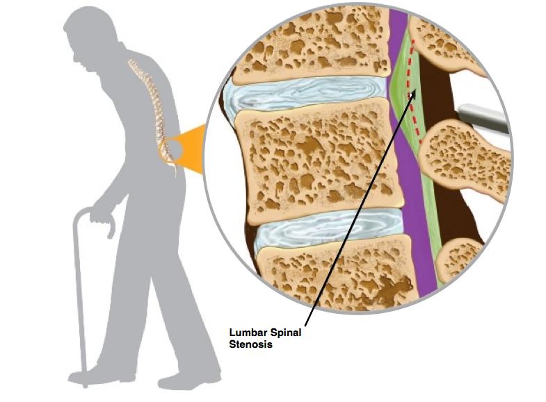 Diagram of Lumbar Spinal Stenosis