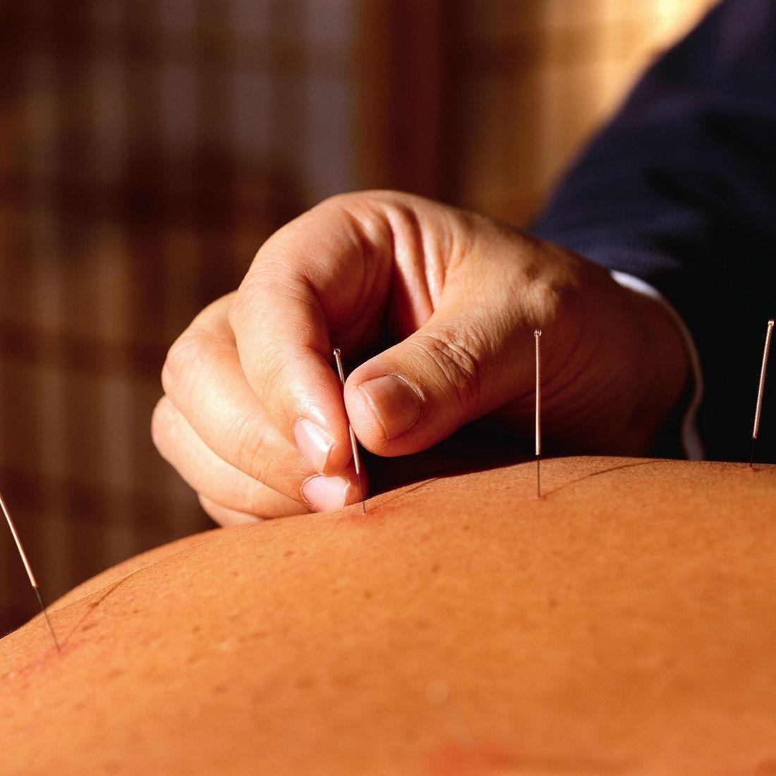 Acupuncture Surrey