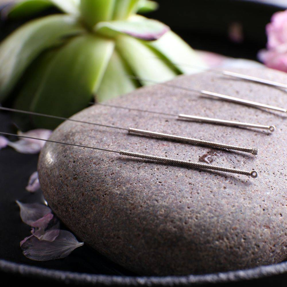 acupuncture Rochester NY