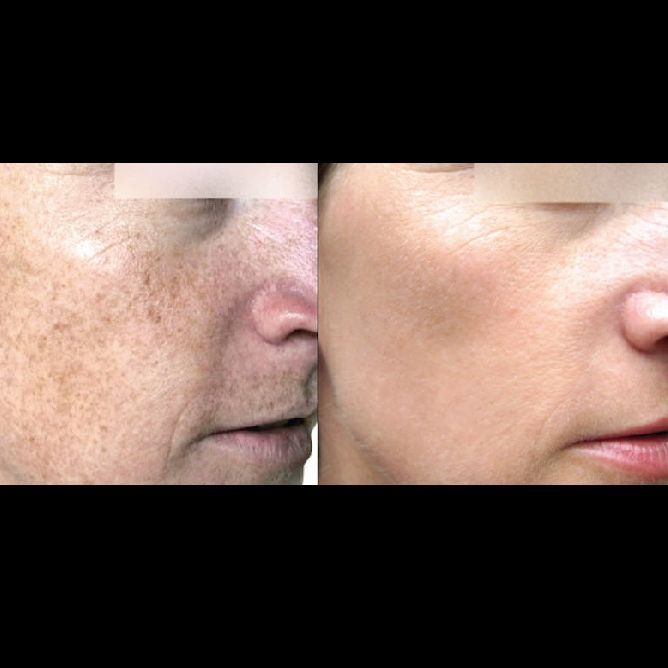 Sciton Laser, BBL, Laser Removal, Anti-Agin, Med Spa, Medical Spa, Age Spots