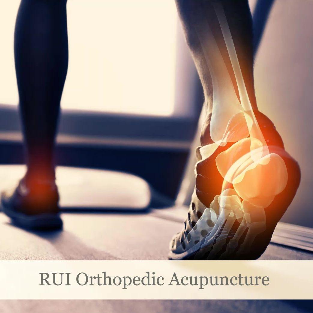 Orthopedic acupuncture, and sports medicine Rochester NY, Orthopedic Acupuncture Rochester NY, Syracuse NY, Binghmaton NY, and Sports Medicine Rochester NY, Sports Acupuncture  Rochester NY, Syracuse NY, Binghmaton NY