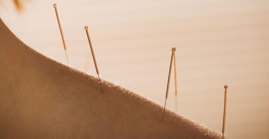 Fort Saskatchewan Acupuncture BodyTx