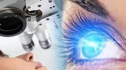 LASIK Eye Surgery Mazatlan Mexico