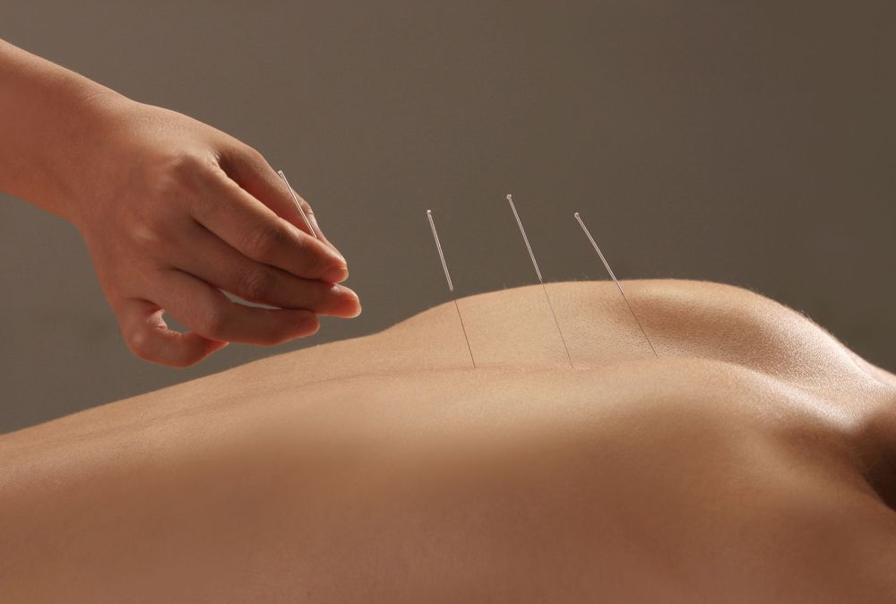 barrie acupuncture