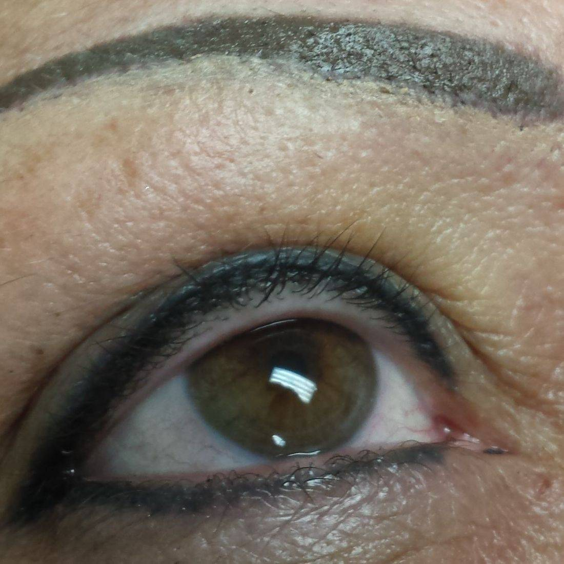 After - Lower liner healed before touch up