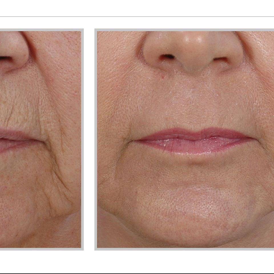 Sciton Laser Wrinkle Removal Anti Aging Reverse Aging